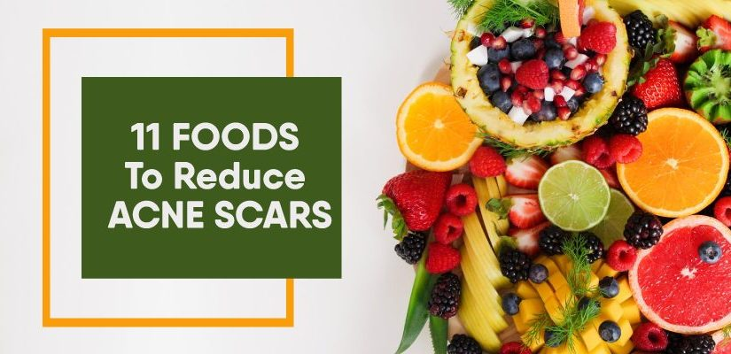 11 food to reduce acne scars